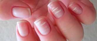 Характеристика и виды белых пятен на ногтях
